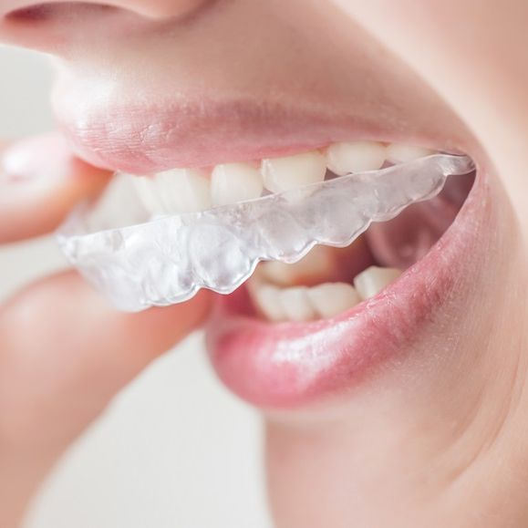 woman putting invisalign onto her teeth