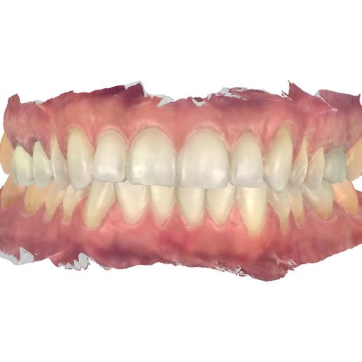 front view of denture
