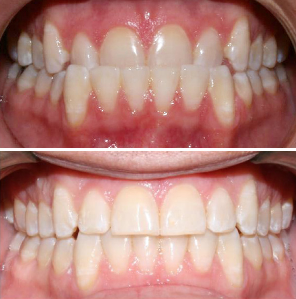 before and after anterior