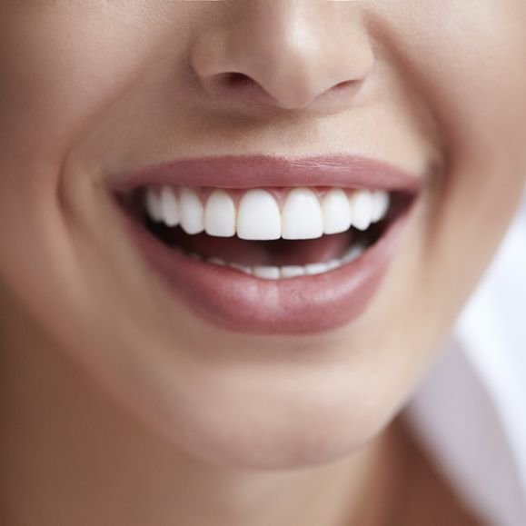 woman showing white teeth