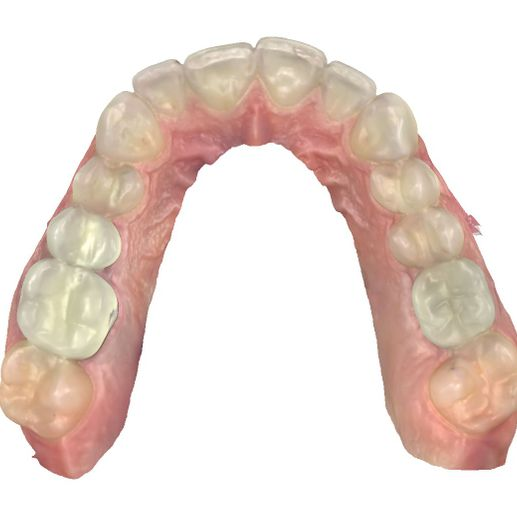 top view of denture